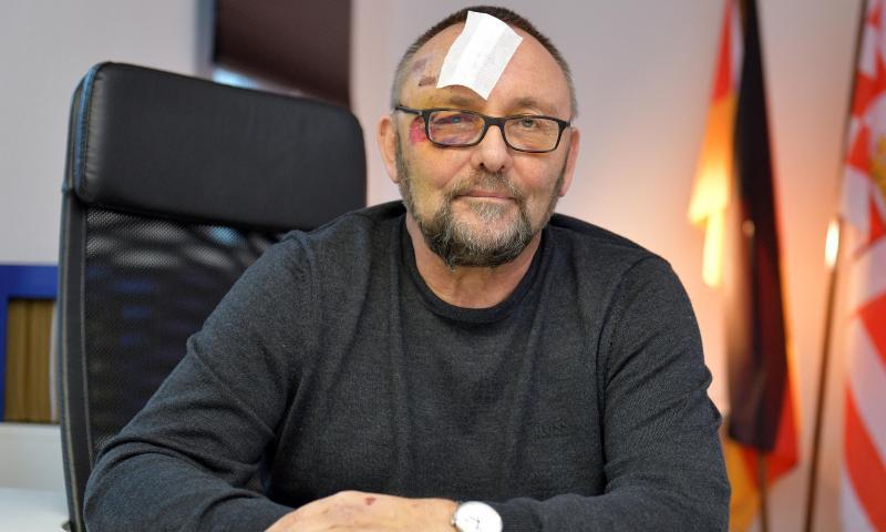 """AfD-Mann Magnitz wollte mit Foto """"mediale Betroffenheit"""" erzeugen"""